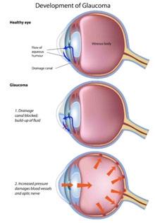 Come ridurre la pressione oculare all'interno dell'occhio